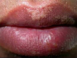 little white spots on lips causes and