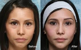 q a with dr steinsapir juvederm vs restylane derma fillers