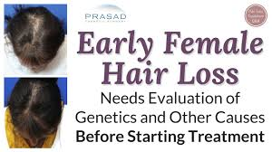 Female Pattern Hair Loss Adorable Treating Difficult Female Pattern Hair Loss Successfully In Over 48