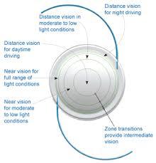 iol intraocular lens implant treatment