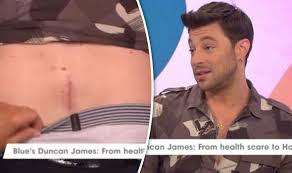 Duncan james фото исполнителя duncan james. Blue S Duncan James Reveals Surgery Scar And Nearly Being Paralysed Tv Radio Showbiz Tv Express Co Uk