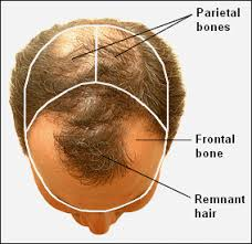 "Male Pattern Baldness Causes Mesmerizing Why The ""Pattern"" In Male Pattern Baldness Develops"