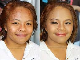 before and after acne scarring coverage