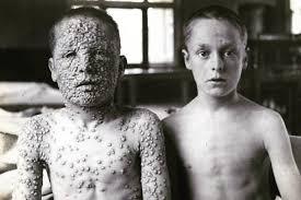 Fotografija grozljive bolezni, ki so jo kazali nasprotnikom cepljenja -  siol.net