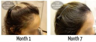 belgravia centre female pattern hair loss hair loss success story
