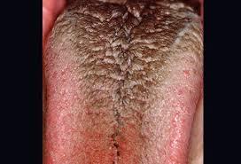 tmj canker sores painful gums