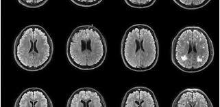 señales precoces de un alzheimer al acecho