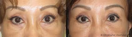 preoperative diagnosis lower lid fat prolapse ie bags under eyes history of prior blepharoplasty with residual fat pads loss of midface volume