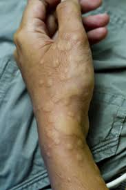 Urticaria and Angioedema | World Allergy Organization