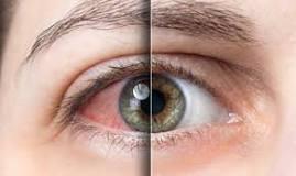 göz hastalıkları ile ilgili görsel sonucu