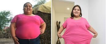 Resultado de imagen para la adolescente más obesa del mundo