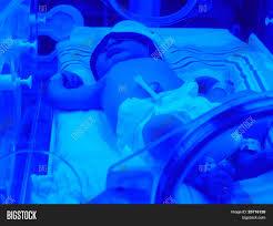 Baby Jaundice Light Newborn Baby Jaundice Image Photo Free Trial Bigstock