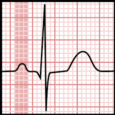 P wave (electrocardiography) - Wikipedia