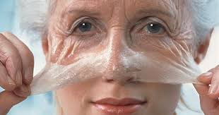 Wrinkle, treatment : 12 Hacks And Home remedies