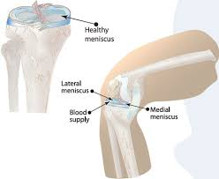 meniscus injuries symptoms causes