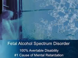 alcohol syndrome essay fetal alcohol syndrome essay