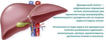 Врожденный гепатит А В и С