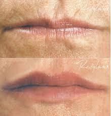 lip fillers lip enhancement