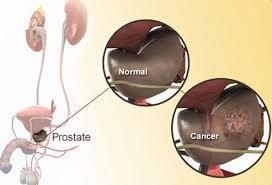 Prostate Specific Antigen Psa Test Results Levels Ranges