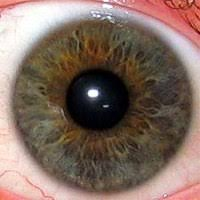 Iridology Wikipedia