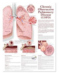 Copd Life Expectancy Chart Chronic Obstructive Pulmonary Disease Copd Chart Poster