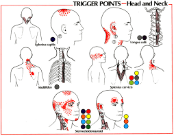 Pain Referral Patterns Gorgeous Trigger Point Referral Patterns Balance In Motion Bodywork