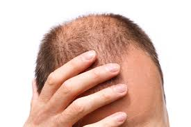 Image result for unusual hair loss public domain