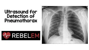 Pneumothorax X Ray Ultrasound For Detection Of Pneumothorax Rebel Em