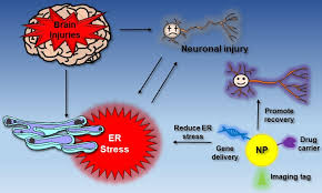 Endoplasmic Reticulum Targeting Endoplasmic Reticulum Er Stress And Restoring Er