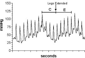 Blood Pressure Recording Gotshall
