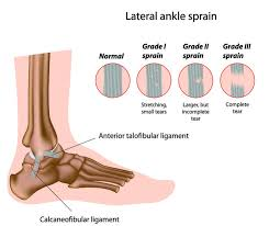high ankle sprain pain relief