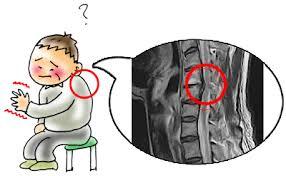 「後縦靭帯」の画像検索結果