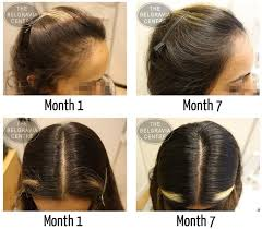 Male Or Female Pattern Baldness Treatments Amazing Women's Hair Loss Treatment Success Stories