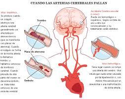 1. Evento vascular cerebral - Fisioterapia en Neurología UVP-7B1