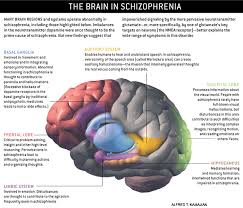 Experience the Hallucinations of a Schizophrenic Through Art     Pinterest PSYCHOTIC DISORDERS OTHER THAN SCHIZOPHRENIA