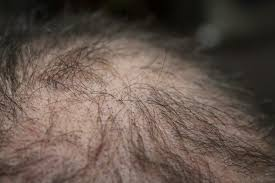 finasteride interactions and