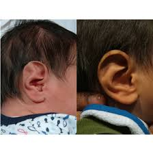 Infant Ear Deformities And Malformations Earwell Centers Of Texas