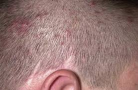 fungal infection on head scalp