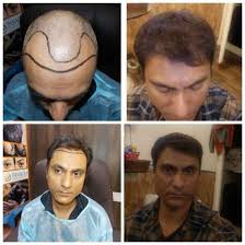 low cost hair transplant in delhi image 1 of 3