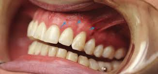 Orthodontic Tooth Chart Mops And Orthodontic Tooth Movement Propel Orthodontics