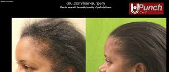 Achieve The Best Success Rates For African American Hair