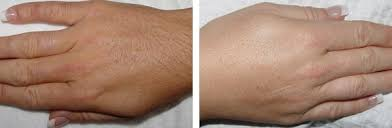 before and after photos in houston tx houston laser hair removal