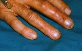 Hydrofluoric Acid Burns Clinical Presentation History Physical