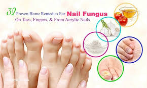 home remes for nail fungus from acrylic nails