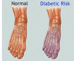 Nerve Pain In Foot Causes Symptoms Diagnosis Foot Pain