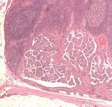 「甲状腺癌」の画像検索結果