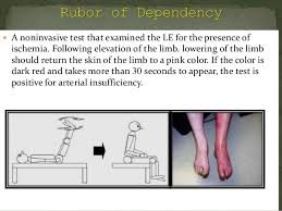 Venous Vs Arterial Insufficiency Chart Test For Peripheral Arterial And Venous Circulation