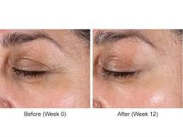 neostrata skin active tri therapy