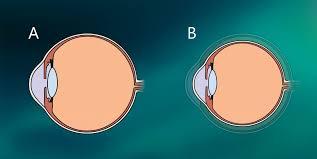 Phacoemulsification In Small Eyes Eurotimes