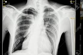 Pneumothorax X Ray Chest X Ray Film Of A Male Patient With Spontaneous Pneumothorax